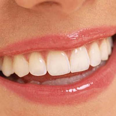 Отбеливание зубов White Light купить в Москве по недорогой цене
